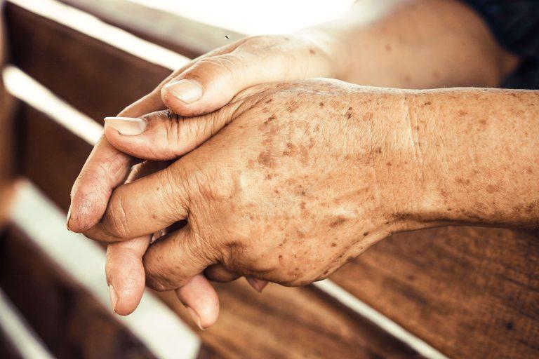 Maksaläiskiä käsissä