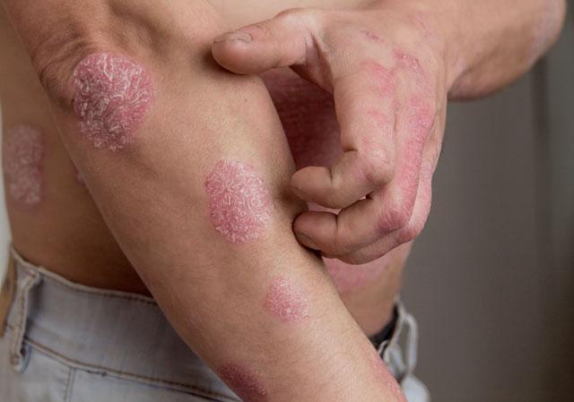 Psori-ihottumaa käsivarressa