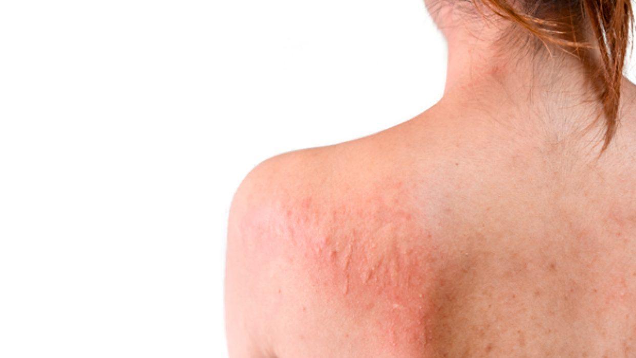 Urtikaria eli nokkosrokko hoituu usein antihistamiinilla