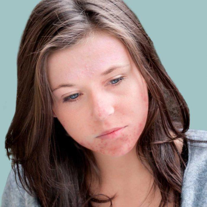 Isotretinoiini on aknen tehokkain hoito